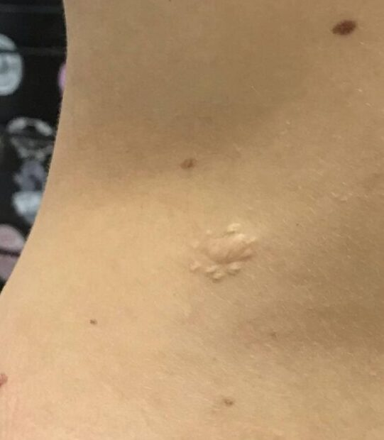 tatuaggio cicatrice 2